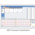 Software Holter ECG (foto2)