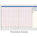 Software Holter ECG (foto3)