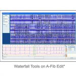 Software Holter ECG (foto4)