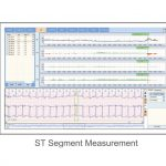 Software Holter ECG (foto7)